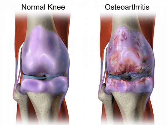 CBD For Knee Arthritis